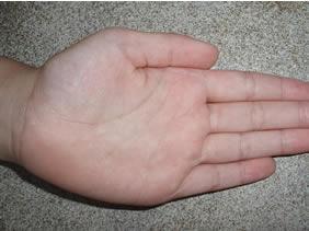 handen vervellen